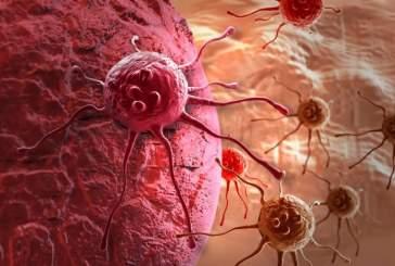 Ученые выяснили, как растут раковые клетки в организме человека
