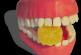 3D-принтер будет печатать искусственную челюсть
