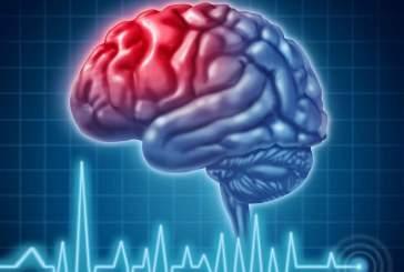 Инсульт «помолодел», уверены ученые