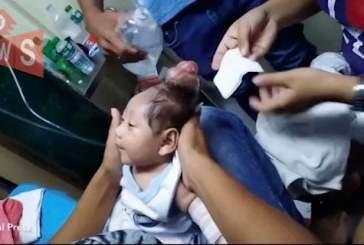 На Филиппинах родился «ребенок-единорог»