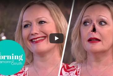 Жительница Великобритании отсоединила свой нос в прямом эфире
