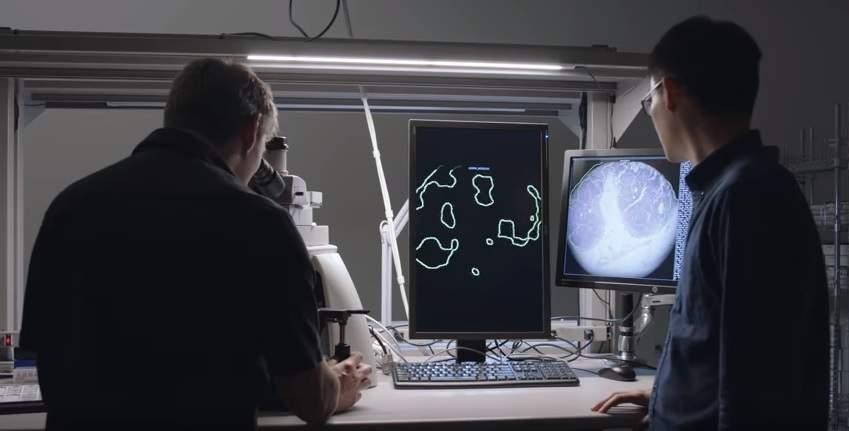ВGoogle создали компьютер, выявляющий рак учеловека