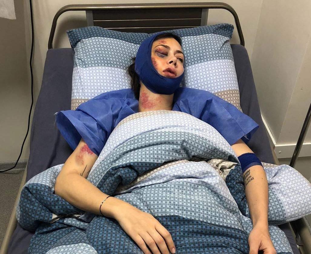 Настасья Самбурская сказала обизбиении и обнародовала фото