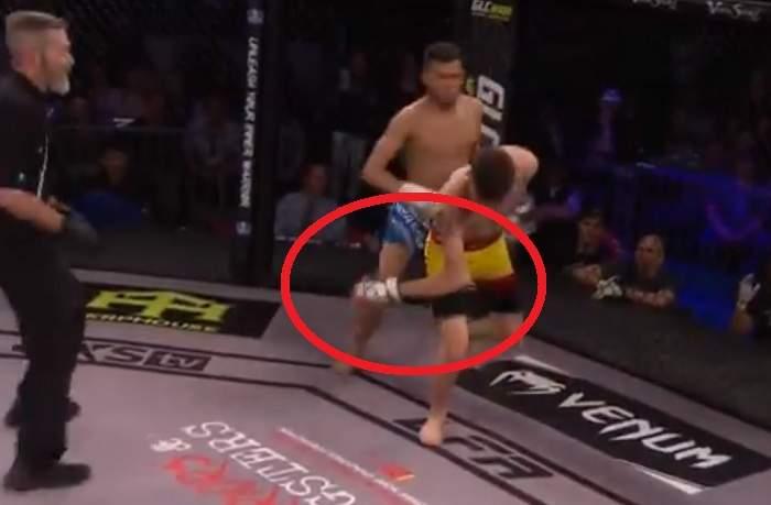 Боец MMA получил жуткую травму руки