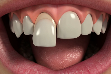 Преимущества и недостатки люминиров для зубов
