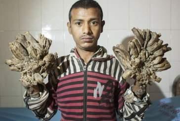Человек-дерево из Бангладеш попросил ампутировать ему руки из-за невыносимой боли