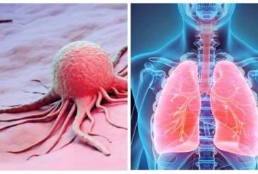 Российские ученые обнаружили новый способ борьбы с раком легких