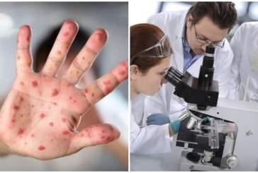 Американские учёные предупредили о начавшейся глобальной эпидемии суперинфекции