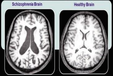Учёные выяснили, что у больных шизофренией имеется недостаток белка в синапсах